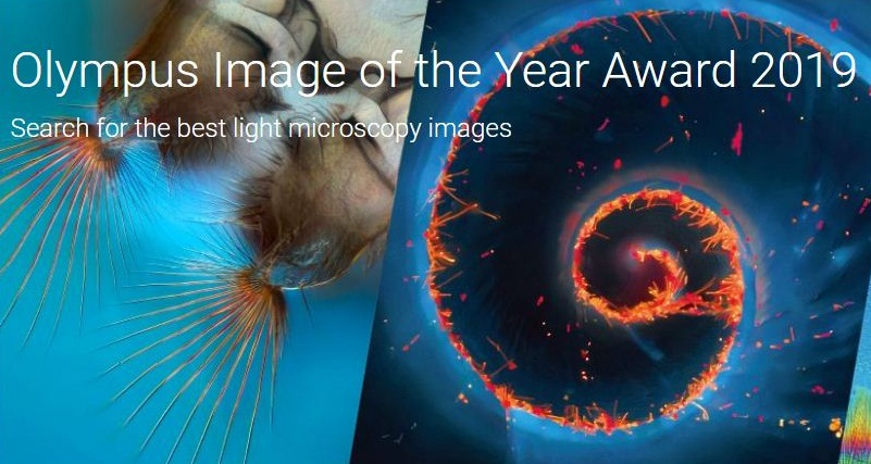 Olympus Image of the Year Global Life Science Light Microscopy Award 2019